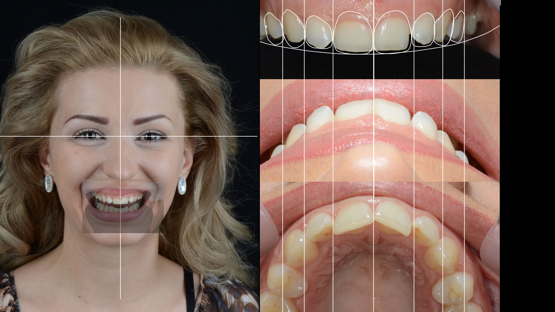 Дигитален дизайн на усмивката