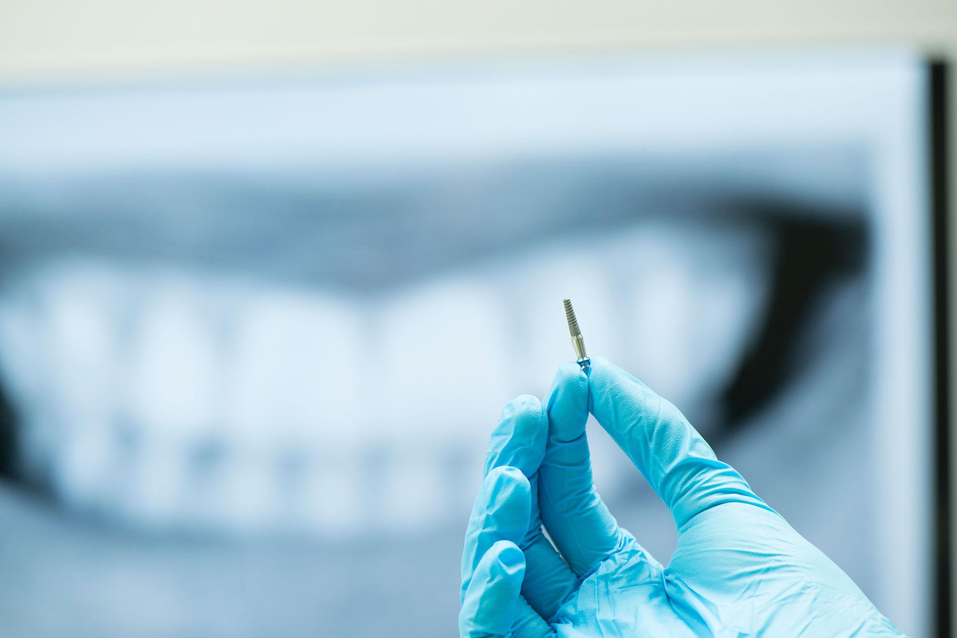 кои зъбни импланти са добри и защо