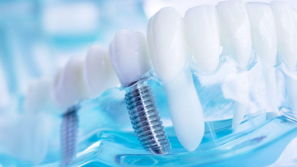 методи-на-имплантиране-зъбни-импланти-дента-консулт