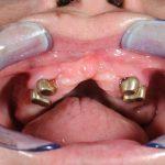 лечение-без-зъбни-импланти-магнити