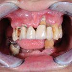 лечение-без-зъбни-импланти