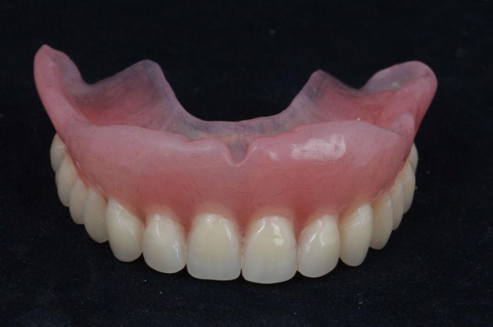 3d-визуализация-на-лечение-без-зъбни-импланти