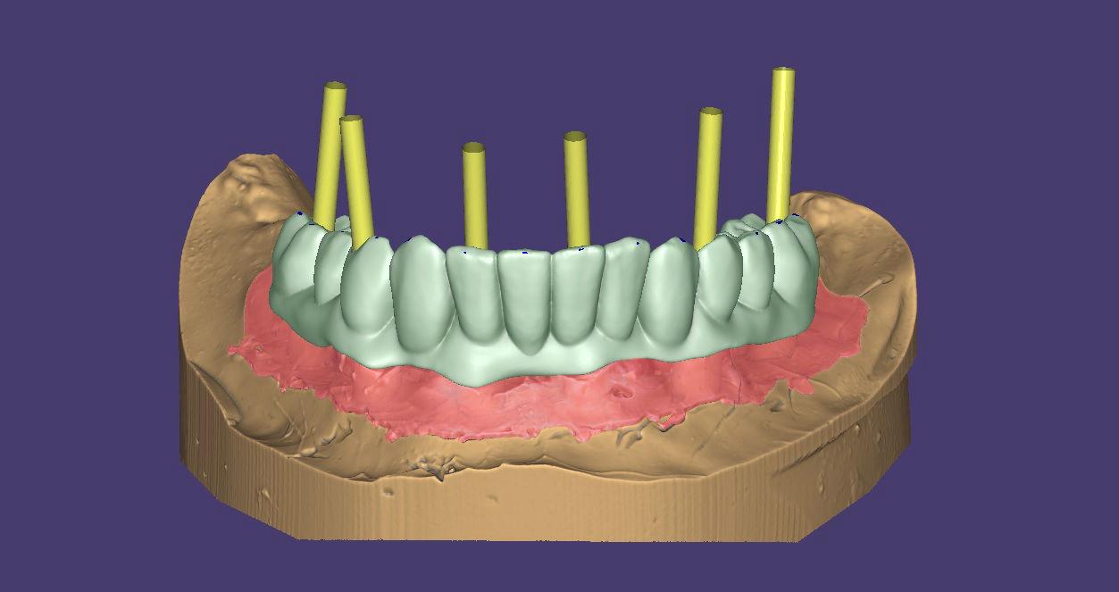 Зъби-върху-зъбни-импланти-протезиране
