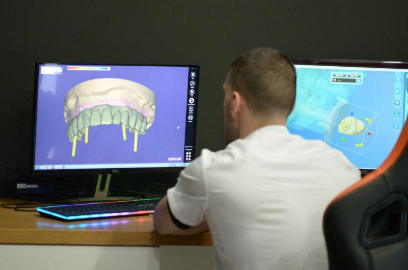 Зъби-върху-зъбни-импланти-3d-проектиране