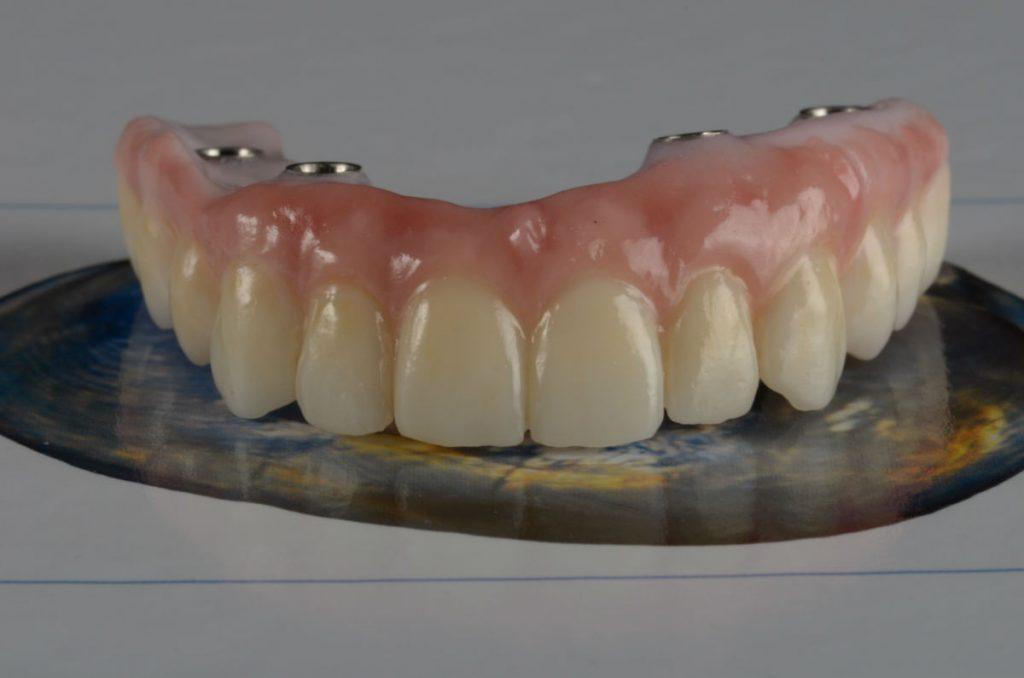Протезиране-зъбни-импланти-протеза-1