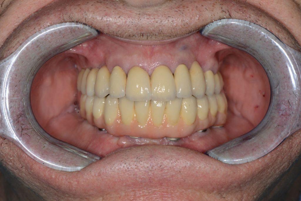 Протезиране-зъбни-импланти-протеза-4