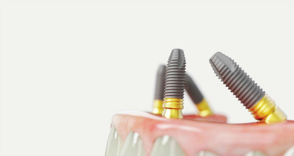 all-on-4-Ценови-варианти-за-лечение-с-4-зъбни-импланта
