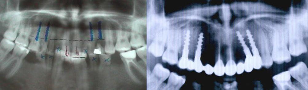 Зъбни-импланти-пълна-промяна-планиране