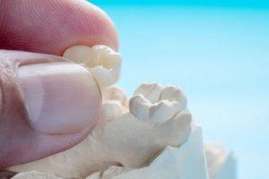 гипсови-отпечатъци-преди-полагане-на-зъбни-импланти