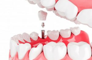 зъби-върху-зъбни-импланти-проект-преди-поставяне