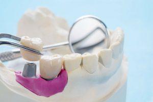 професионално-лечение-със-зъбни-импланти