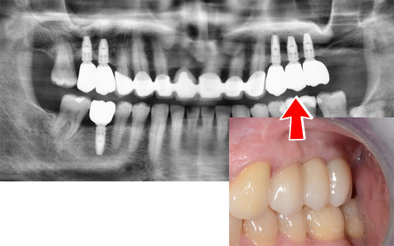 Лечение-със-съвременни-зъбни-импланти