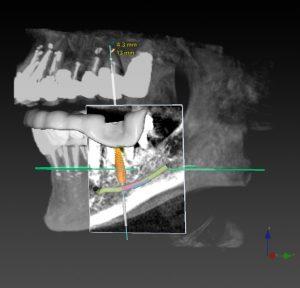 зъбни импланти-снимка-рентген