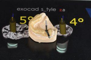 планиране-проект-за-лечение-със-зъбни-импланти