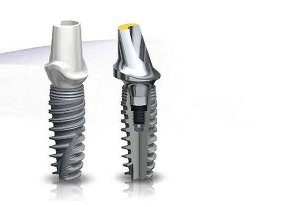 съвременни-bone-level-зъбни-импланти