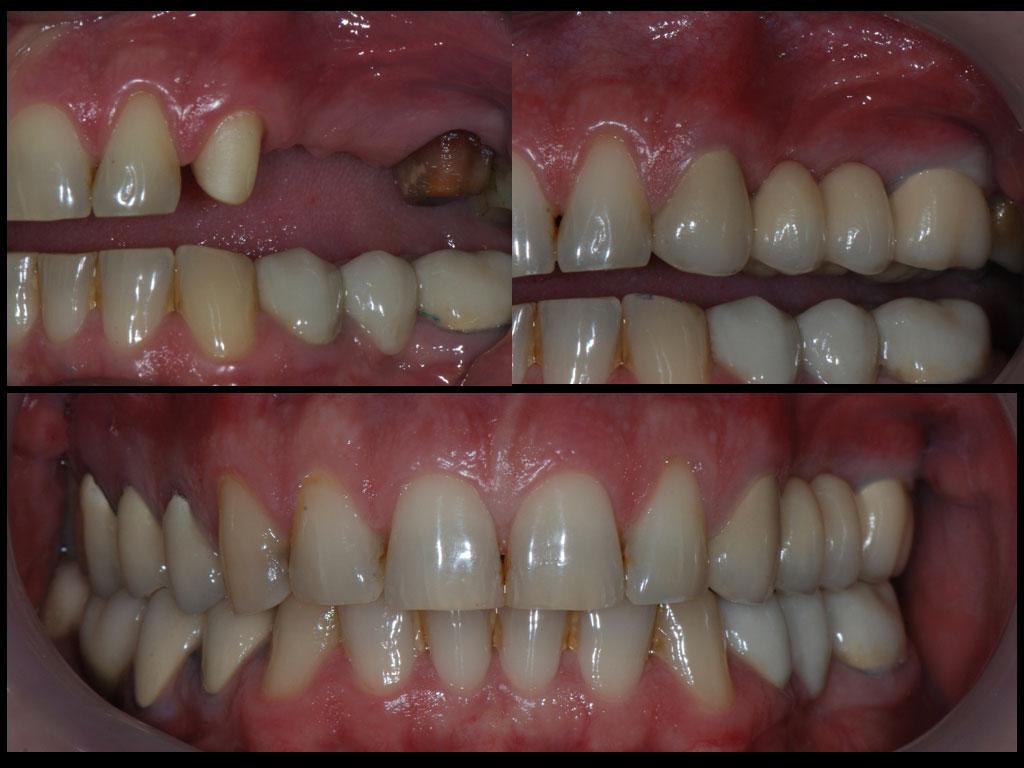 лечение-със-зъбни-мостове